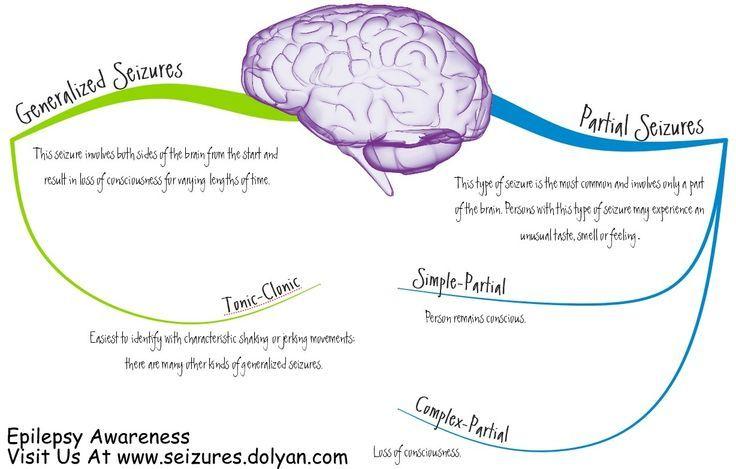 Generalized Seizures And | Epilepsy Seizures Epilepsy ...