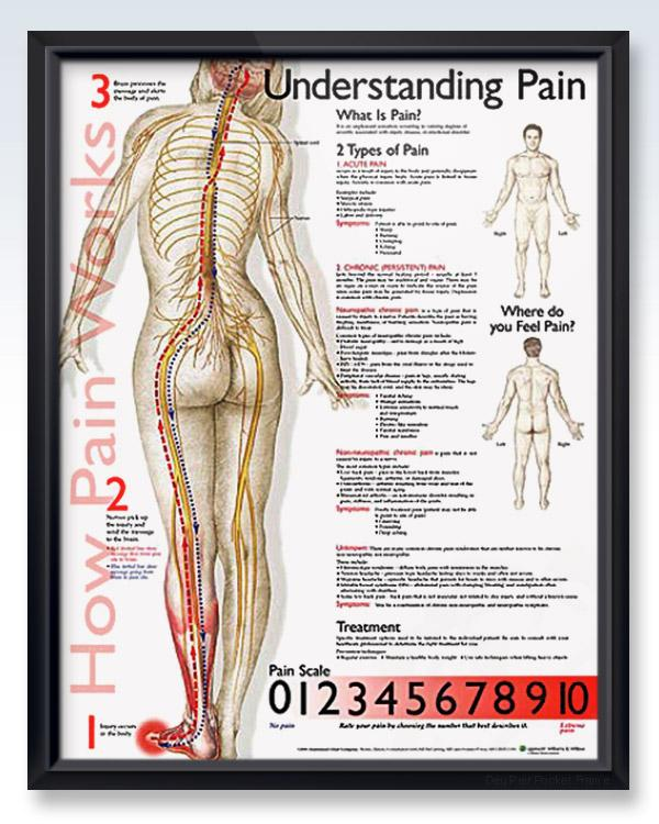 Understanding Pain 20x26 | Anatomy, Pain relief and Neck pain