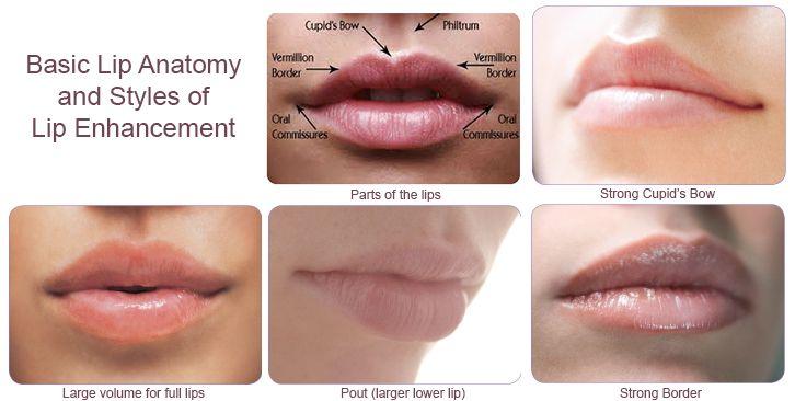 restylane lip tint