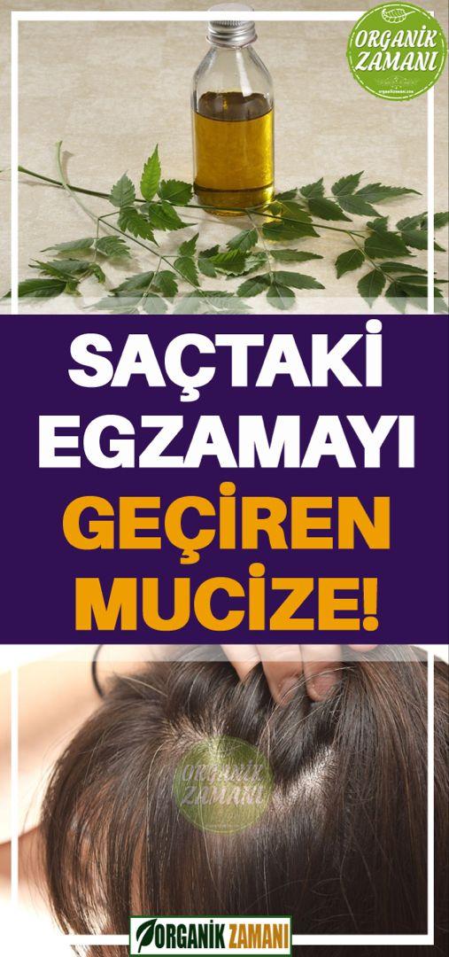 Sactaki Egzamayi Geciren Mucize Dogal Sac Bakimi Dogal Saglik