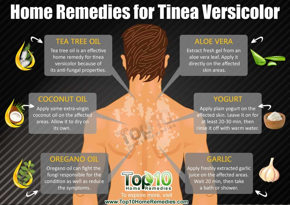 Best Natural Cure For Tinea Versicolor