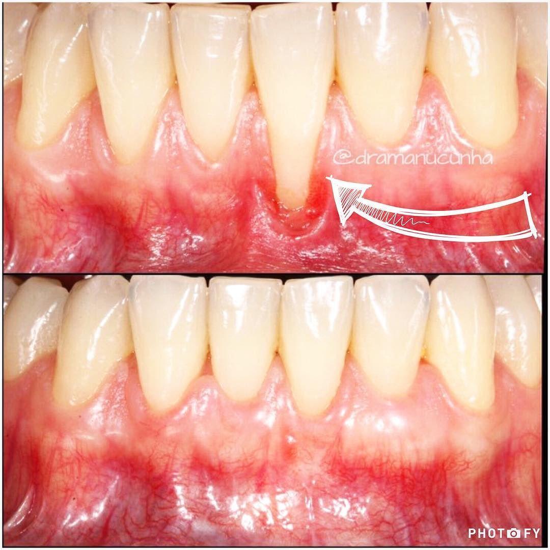 Técnica de recobrimento radicular com enxerto de tecido conjuntivo Nesta técnica o tecido doador é do palato do próprio paciente o que torna o resultado muito mais estético. . . . . . #surgery #cirugia #aesthetic #aesthetics #antesedepois #amorpelaprofissao #odonto #odontolife #odontology #oralhealth #odontologia #odontolovers #dicas #dental #dentes #dentist #dentistry #dentista #periodontia #periodontia #periodontics #periodontology by dramanucunha Our Dental Services Page…