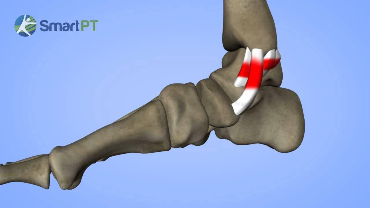 Medial Ankle Sprain   Kinesiology 4U   Pinterest