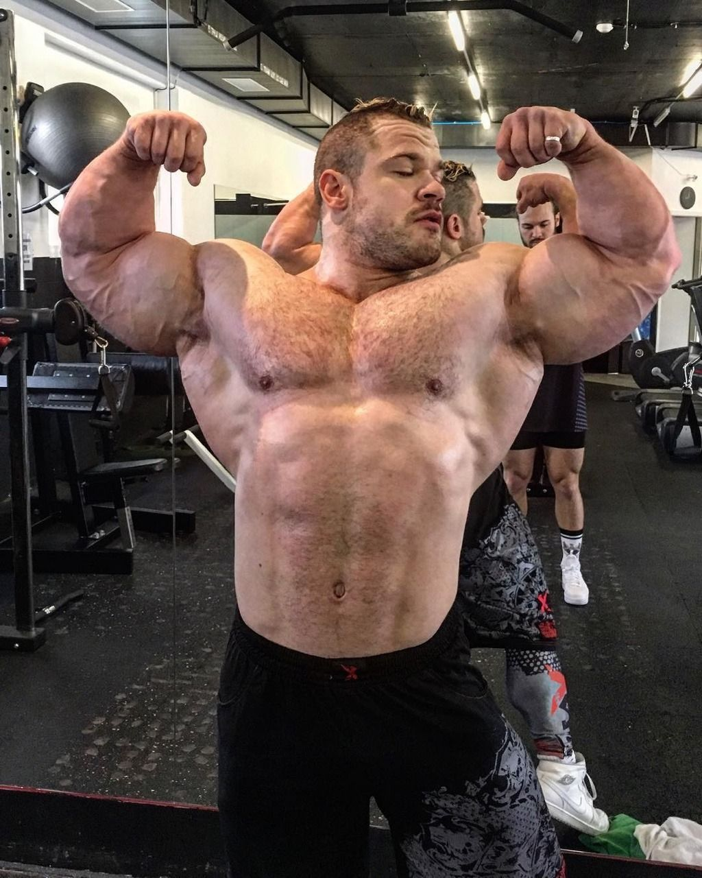 Synthol Shoulders: Bloke Shows Off Brand New Synthol-Enlarged Biceps
