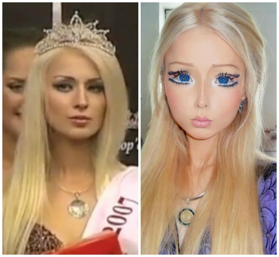 Best Places In The World To Have Plastic Surgery: Why Would She Do This To Herself?