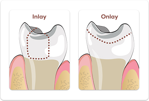 Pin On Our Dental Services