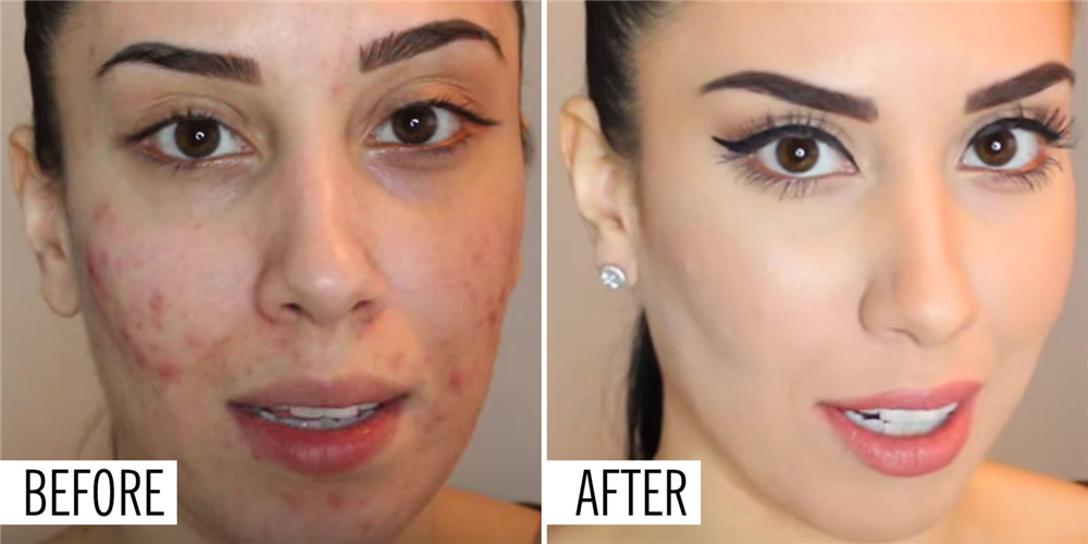 The 17 Best Foundations That Actually *Help* Your Acne