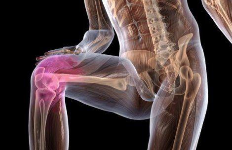 Суставах народными средствами что делать если болят упражнения для разработки коленного сустава после растяжения связок
