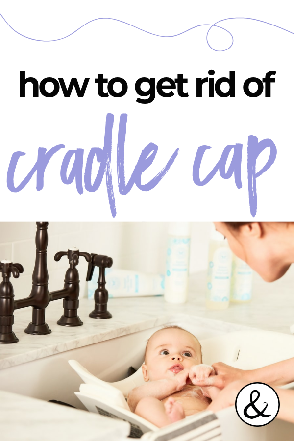 How To Get Rid Of Cradle Cap With One Simple Natural Remedy In 2020 Cradle Cap Baby Cradle Cap Detox Your Home