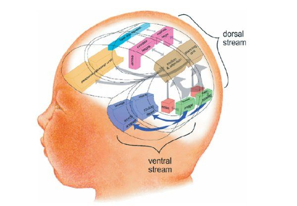 the cortical visual impairment Cortical visual impairment (cvi) is a form of visual impairment that is caused by a  brain problem rather than an eye problem some people have both cvi and a.