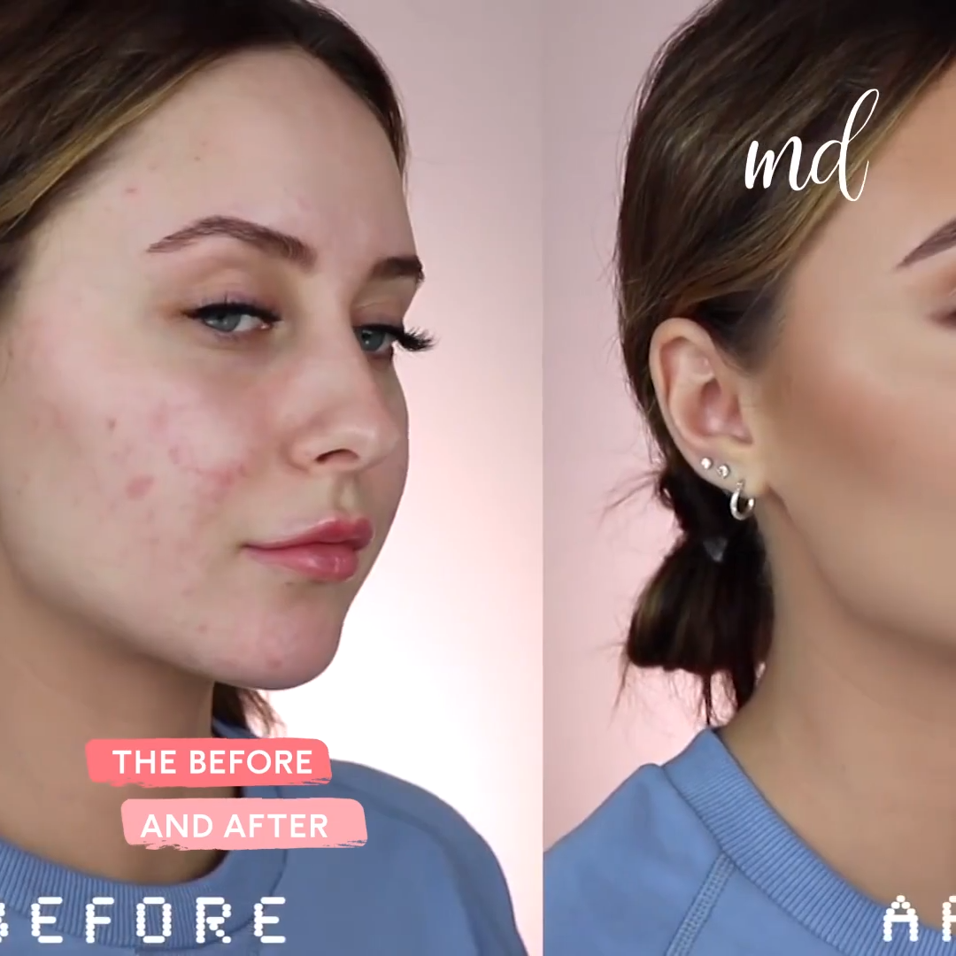 HOW TO COVER ACNE SCARS is part of Makeup - Stepbystep face makeup look! 😍