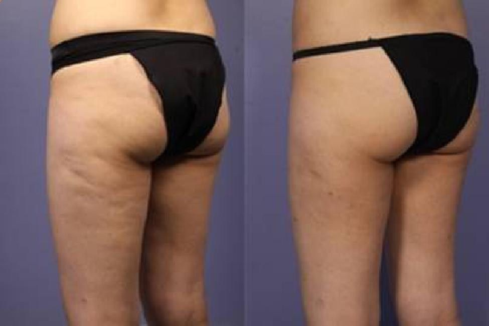 GET RID OF CELLULITE NOW! IN 5 SIMPLE STEPS