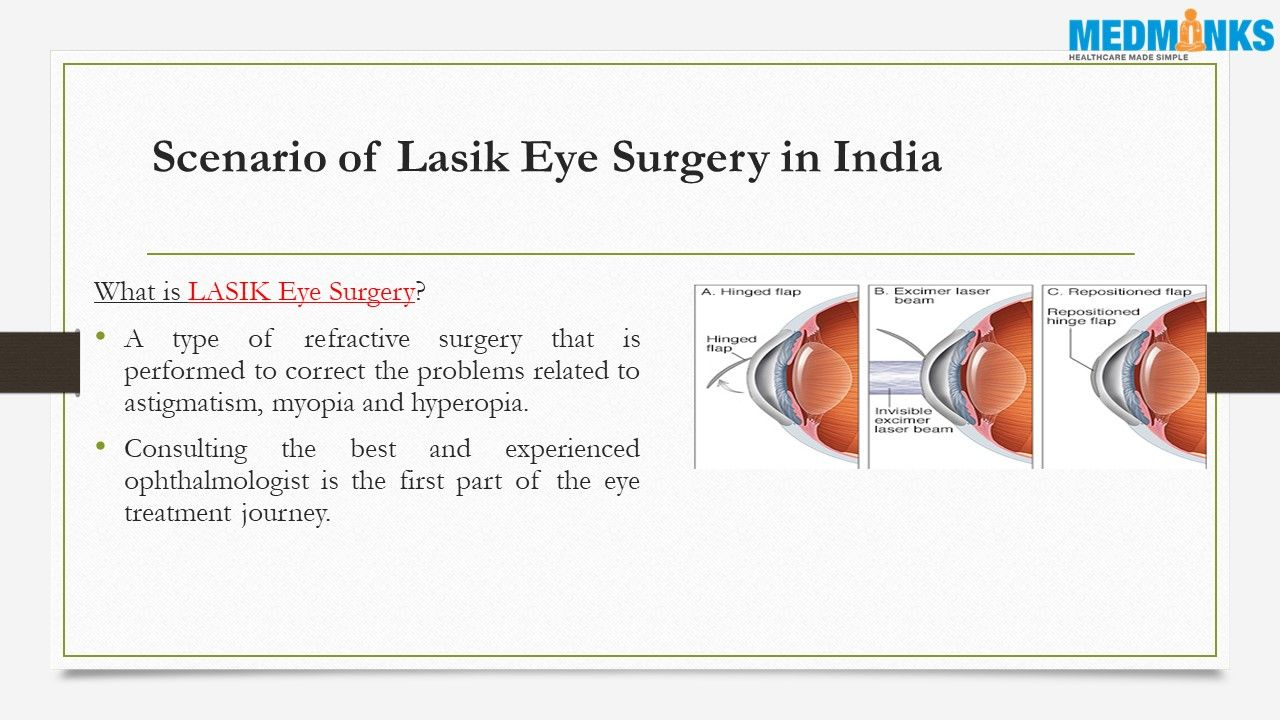 A Type Of Refractive Surgery That Is Performed To Correct The Problems Related To Astigmatism Myopia And Hyperopia Eye Surgery Surgery Lasik Eye Surgery
