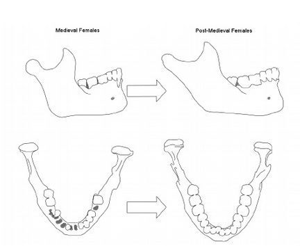 Changes In Mandibular Dimensions During The Medieval To Post