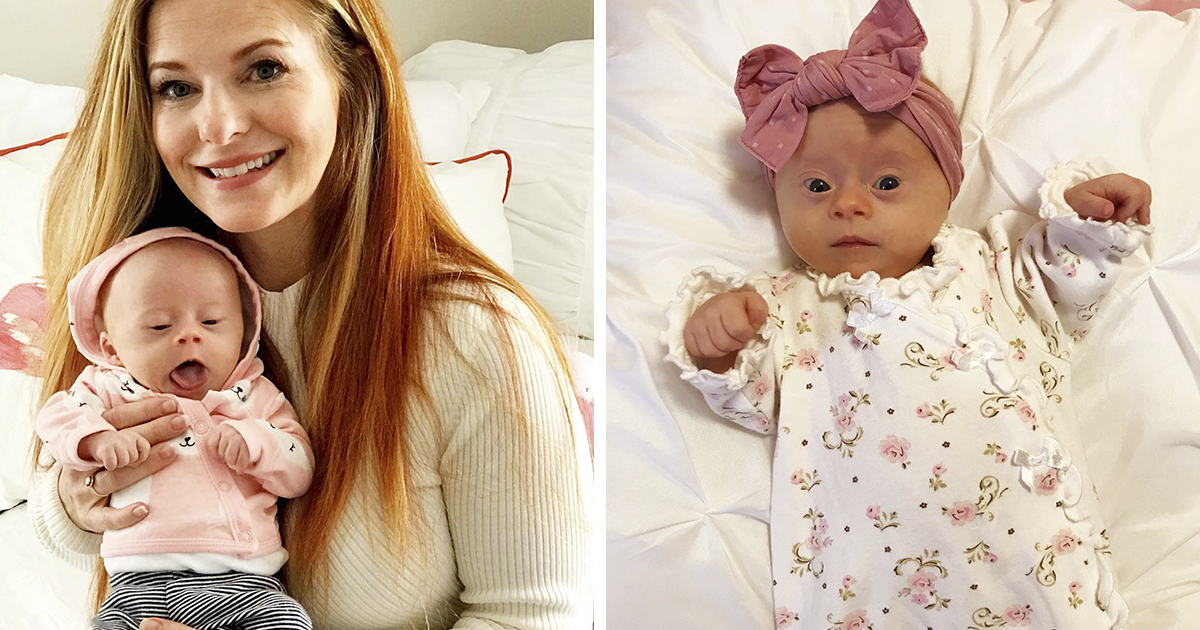 Mom Shares Honest Review Of Her Baby With Down Syndrome And 347k People Love It Down Syndrome Baby Down Syndrome Down Syndrome Kids