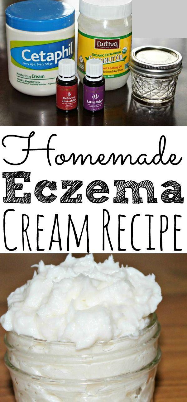 Homemade Eczema Cream With Essential OIls