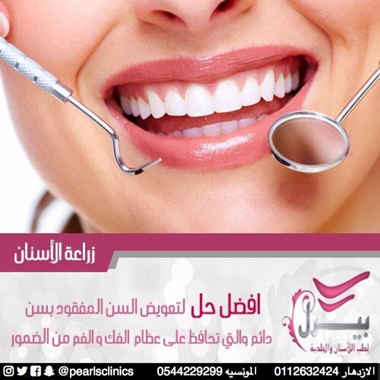 زراعة الاسنان افضل حل لتعويض السن المفقود بسن دائم والتي تحافظ على عظام الفك والفم من الضمور مجمع عيادات Nostril Hoop Ring Hoop Ring Septum