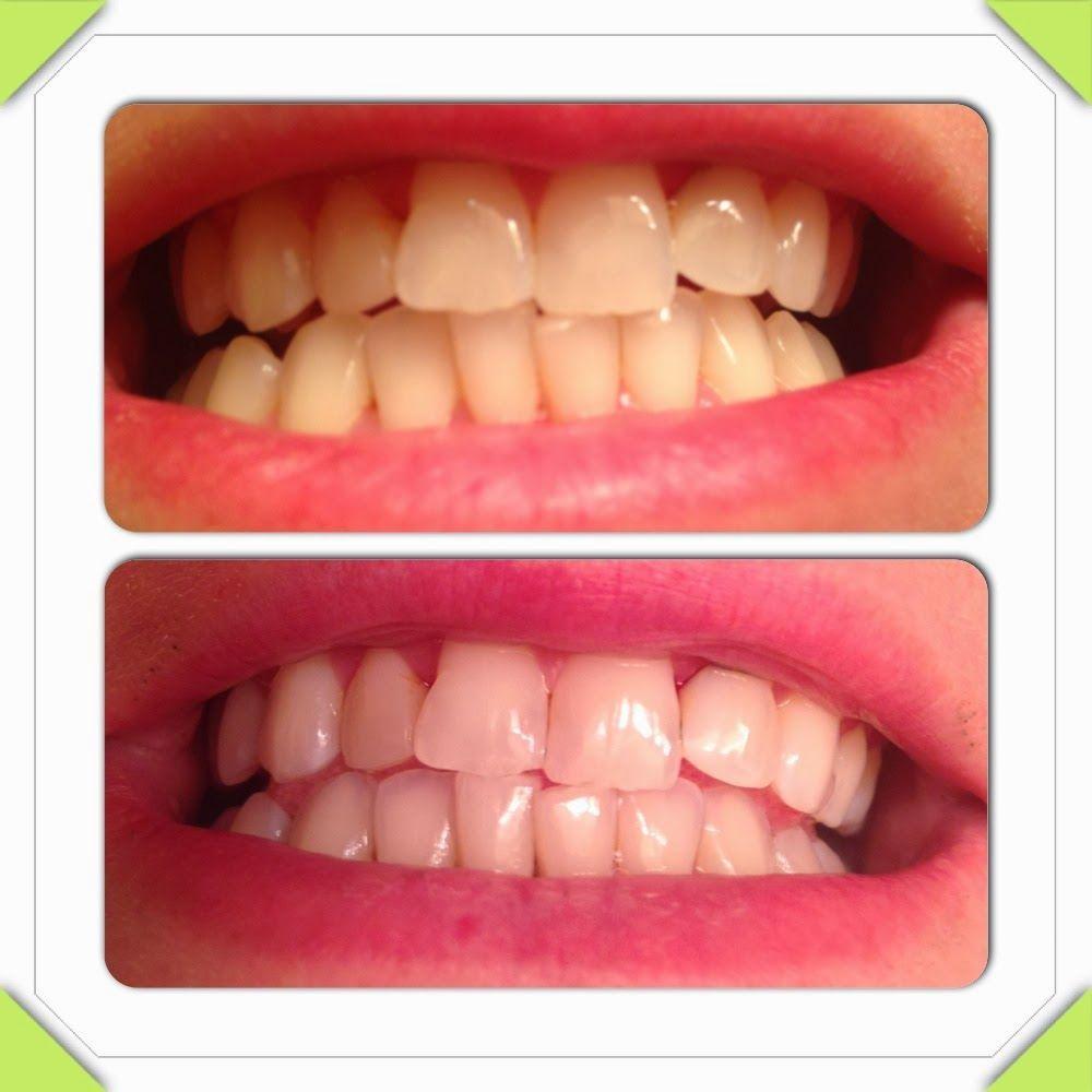Pin on Homemade Whitening of Teeth