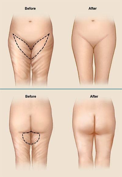 A Thigh Lift Charleston Cosmetic Surgery procedure, also known as ...
