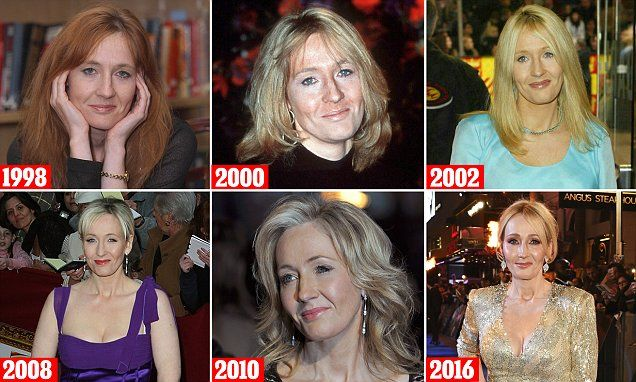 Kylie Minogue Plastic Surgery Before and After Botox