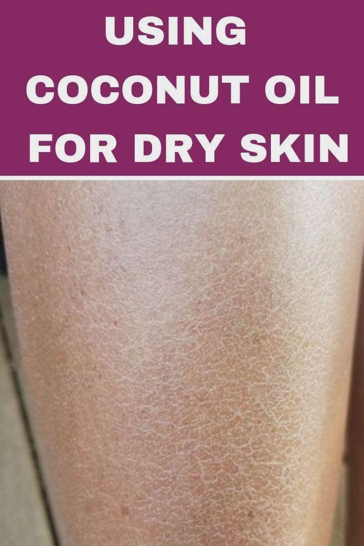 Pin by bronislavroshchenyuk on beauty oil for dry skin