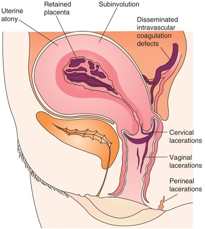 What Is Sub Involution This Simply Means That The Uterus Does Not