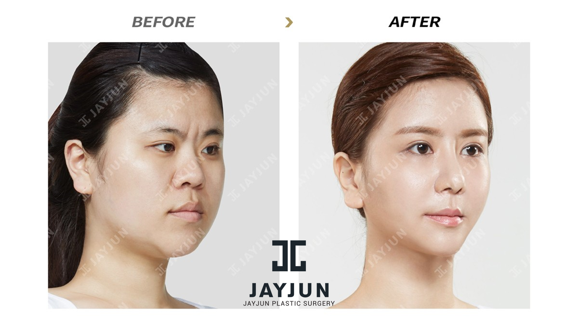 facial contouring surgery in korea korea facial contouring korean