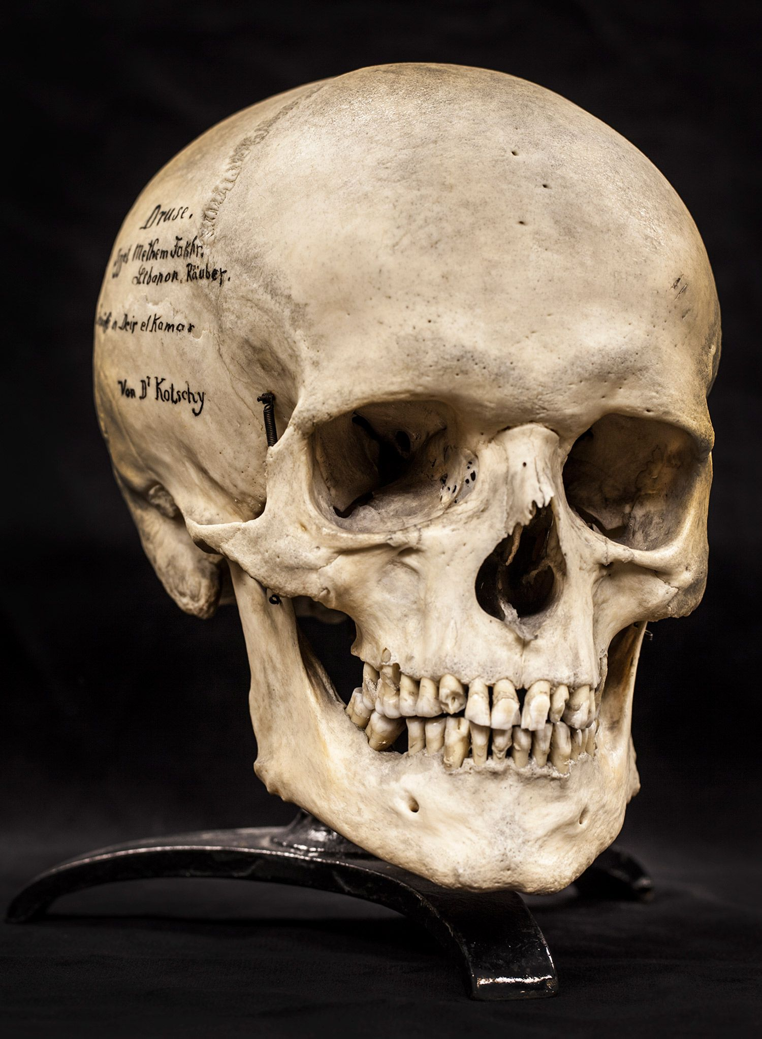 human skull - Google zoeken | References | Skull, Human ...