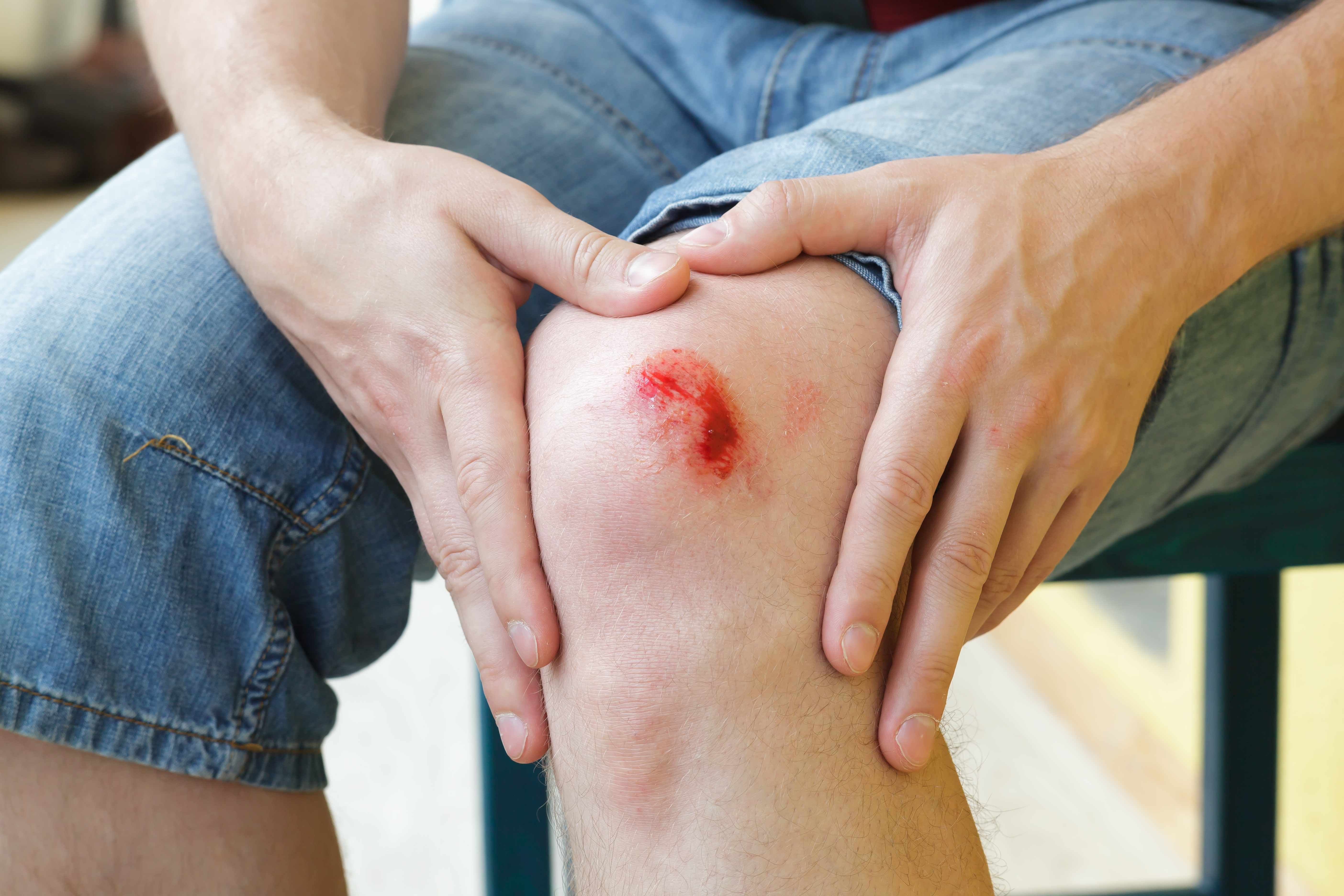 Treating Skin Abrasions Known As Raspberries Heart Disease