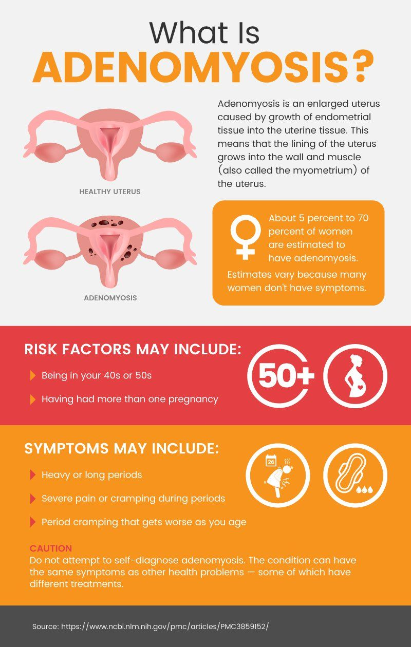 Adenomyosis: Enlarged Uterus Causes (+ Natural Relief | Dr Axe