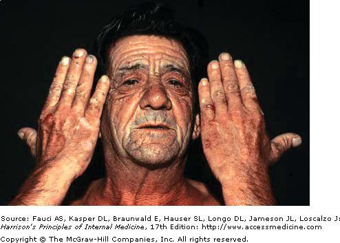 Porphyria Causes | Skin, Nervous system