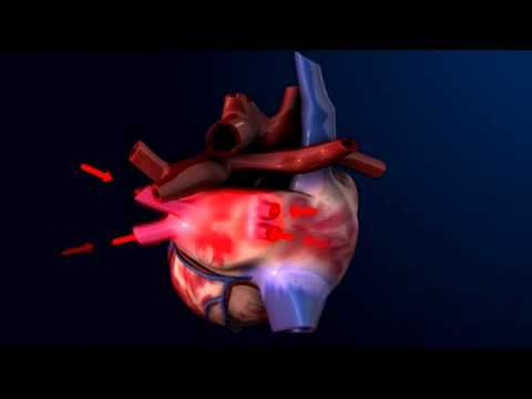 3D Heart animation - how the heart pumps blood   Videos for learning ...