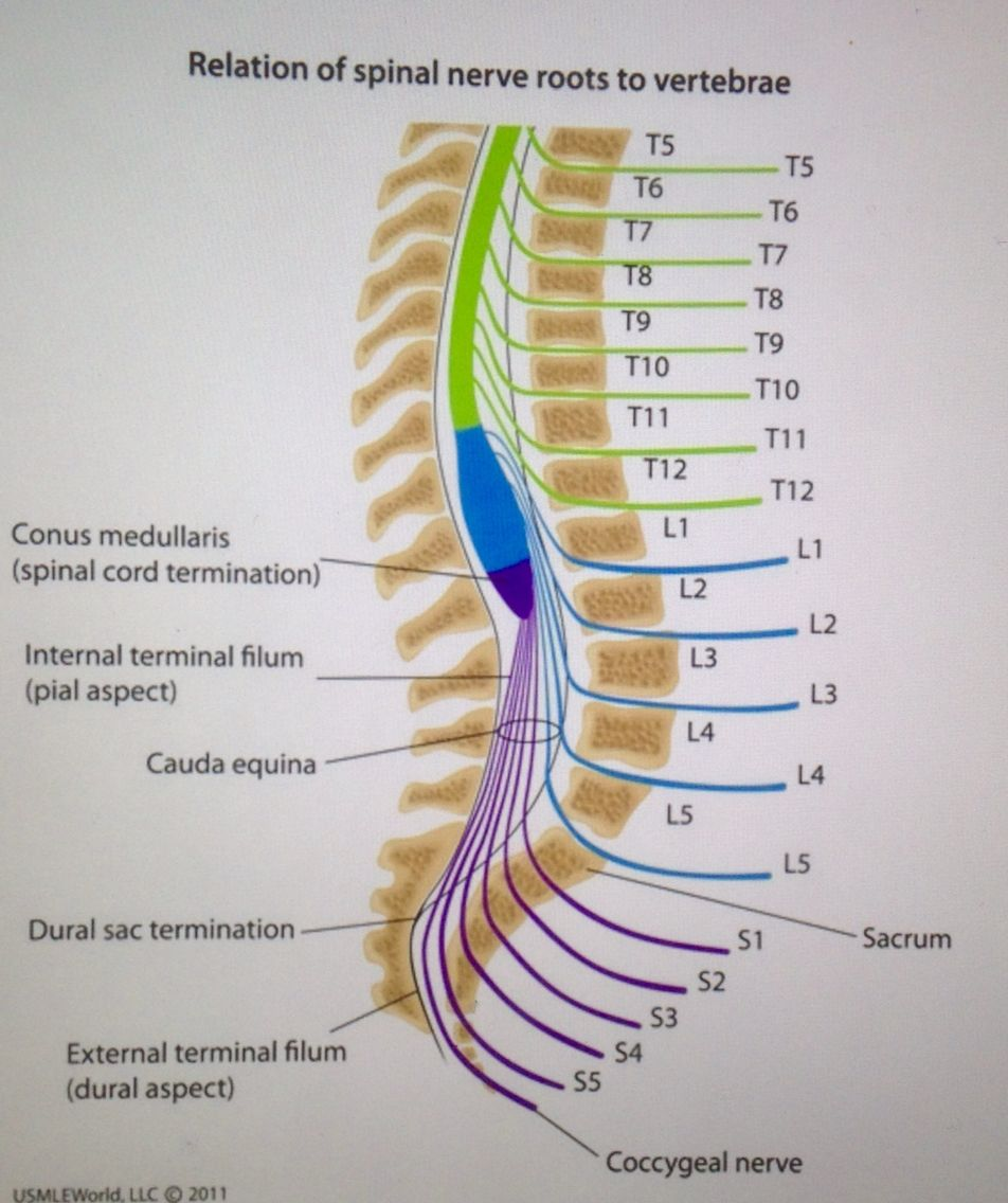 cauda equina syndrome occurs due to compression of spinal nerve, Human Body