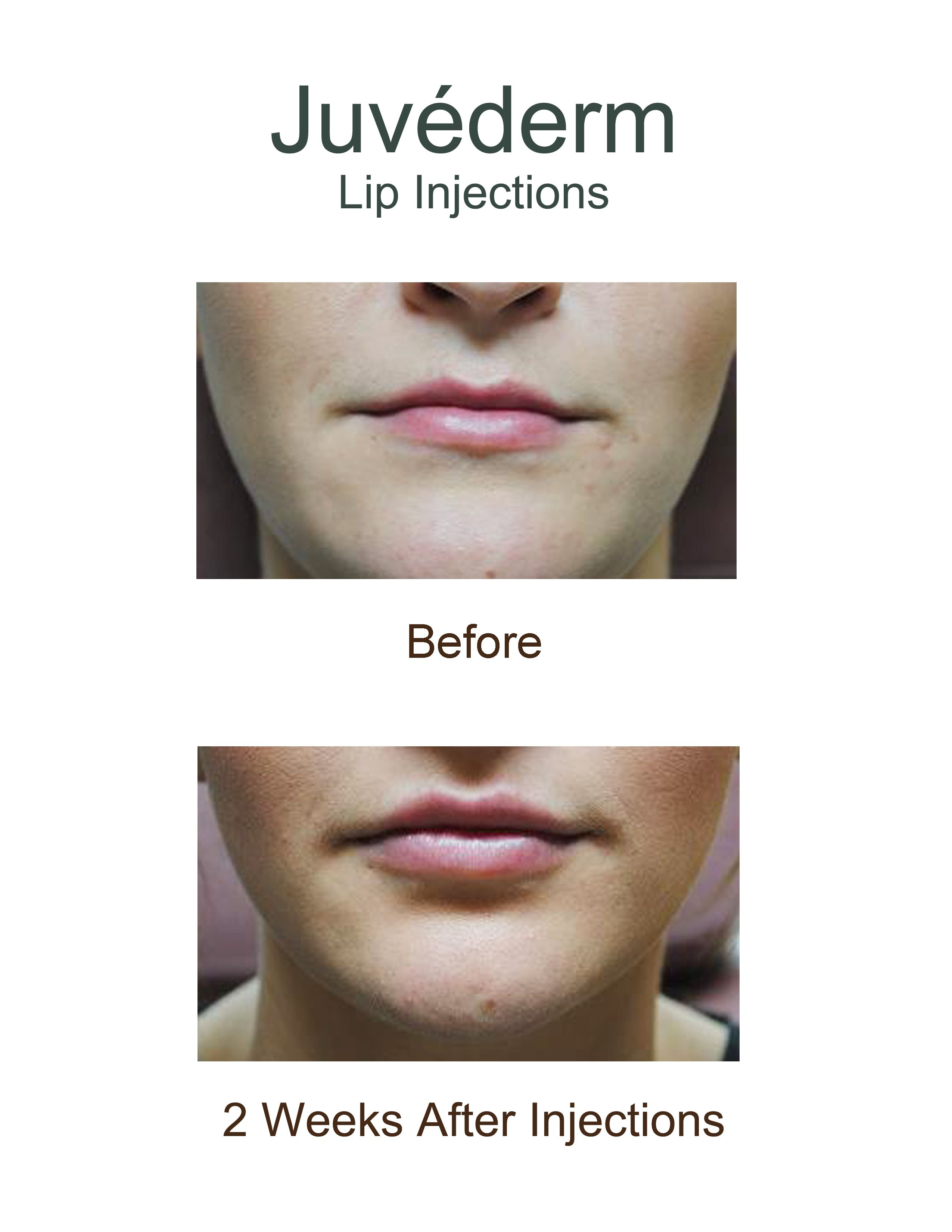 Before and after Juvederm, a dermal filler, lip injections