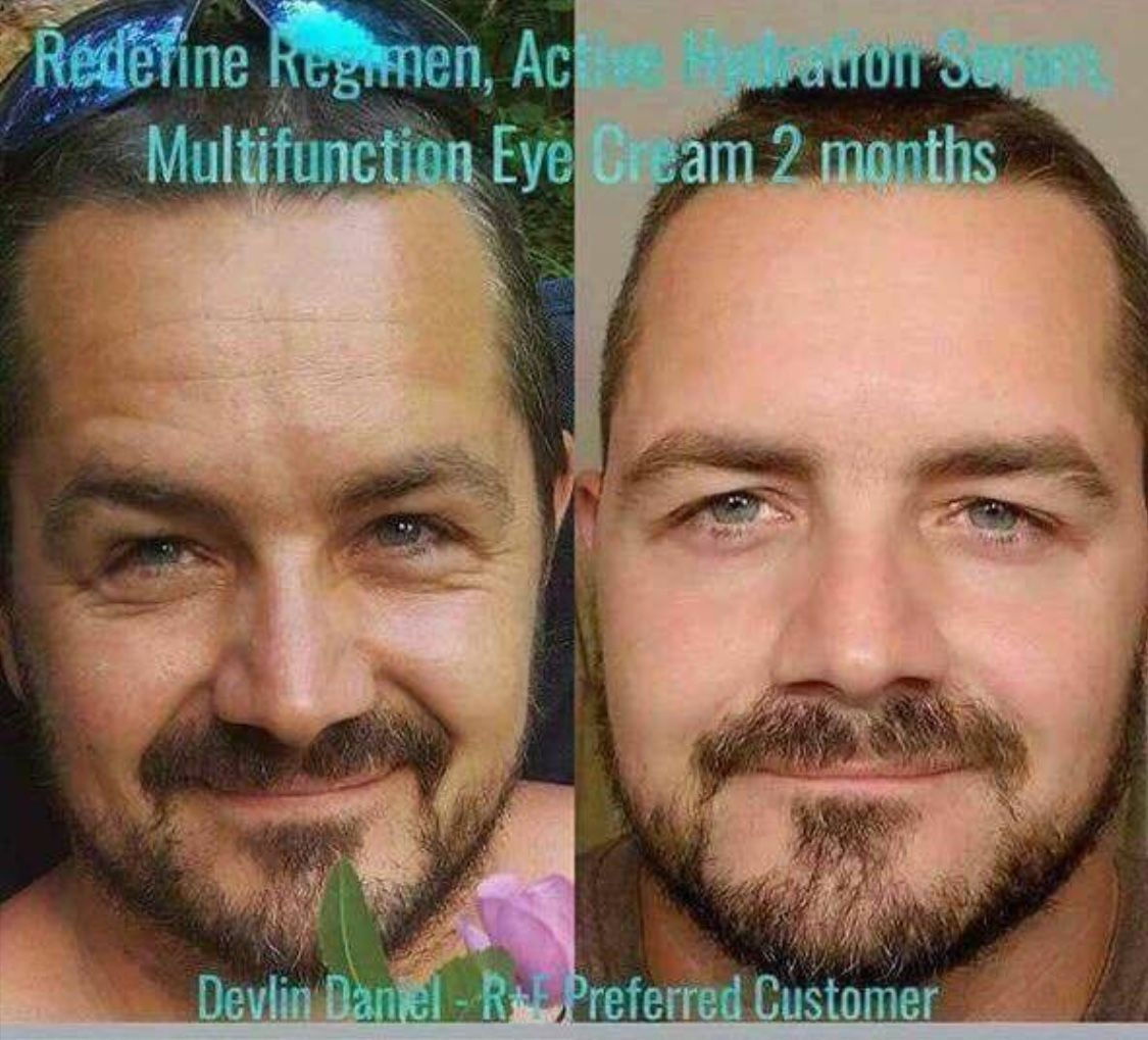 Our Skincare is important for men because they care about their skin too. Guys, treat yourself to the great results of Rodan and Fields. Ladies, treat your guys this Christmas. Message me to order today. @shrptsn #shrptsn #eyecreamsrodanandfields