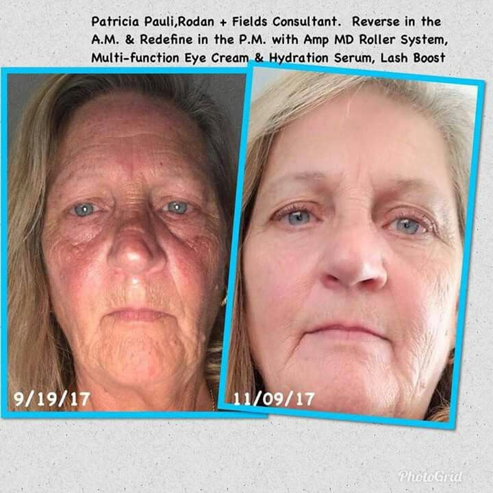 Life changing products!! So glad that Patricia gave Rodan+