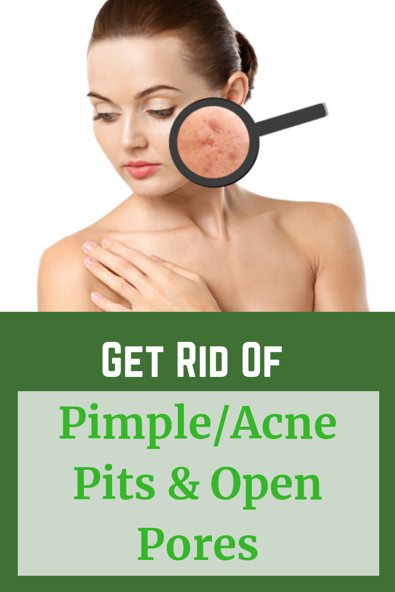 c6991a4e11433908418ab185793672fc - How To Get Rid Of Pimples And Pores Fast