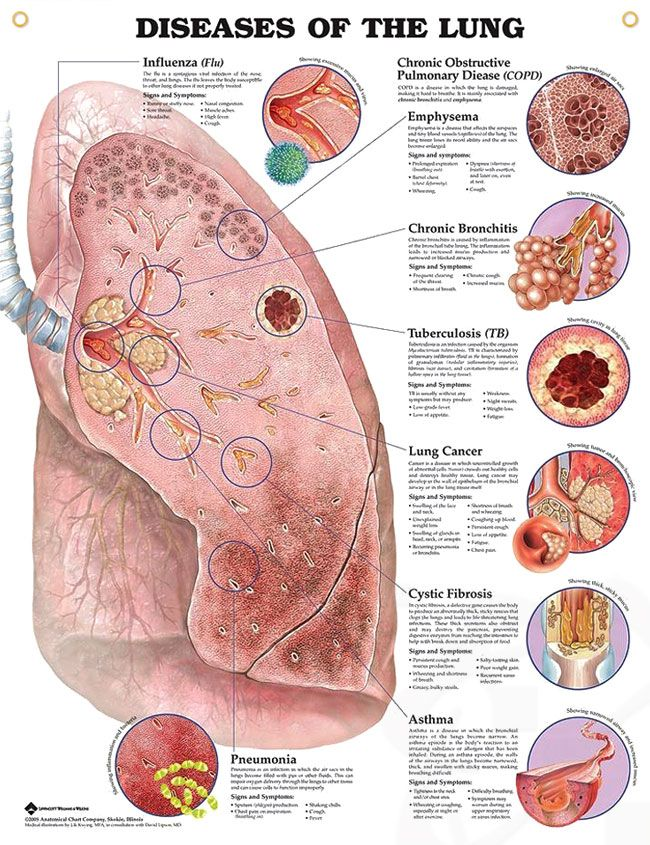 Diseases of the lung chart 20x26 devu pinterest lungs anatomy diseases of the lung anatomy poster shows prominent diseased lung with 8 close up illustrations of specific diseases ccuart Choice Image