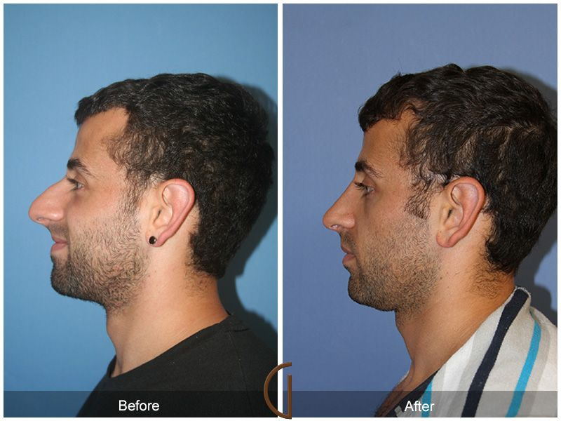 Before And After Rhinoplasty Gallery