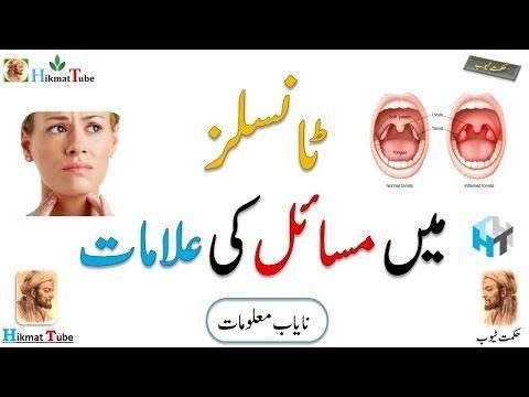 Tonsils Tonsils Symptoms Tonsillitis Treatments Tonsils Function