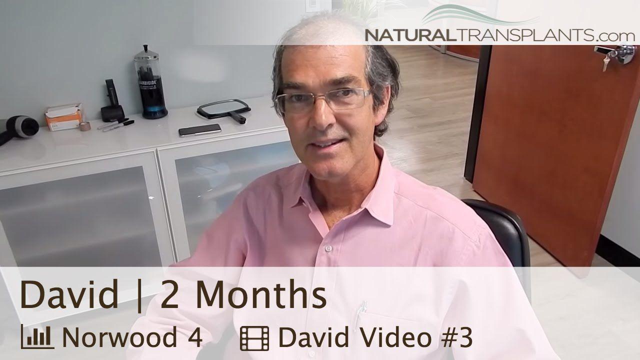 Hair transplant surgery 2 months postop result natural