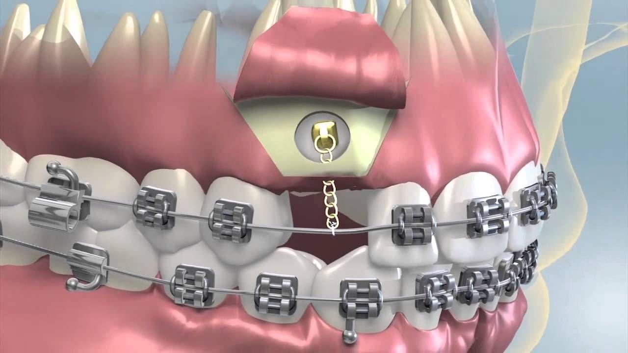 Orthodontics Impacted Tooth Orthodontics Teeth Braces