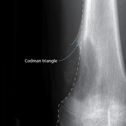 codman's triangle - wedged elevation of periosteum seen on plain