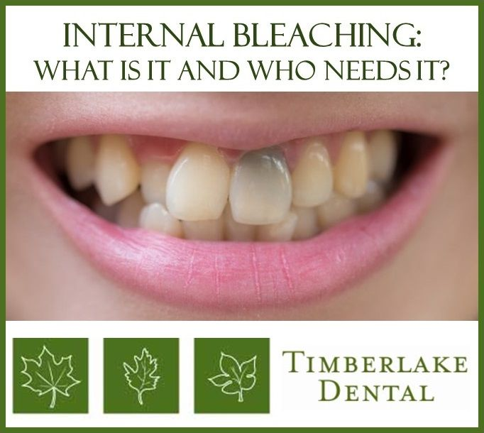 Internal Bleaching What is it, and Who Needs it? Patient