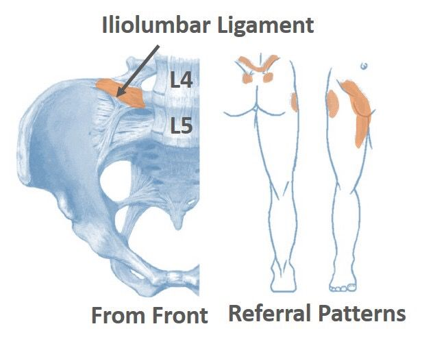 Anatomy Angel: Iliolumbar Ligament | Dr. Dooley Noted ...