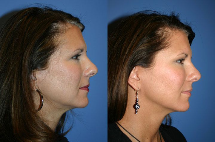 Face exercises the way to firm flabby facial skin and jowls face exercises the way to firm flabby facial skin and jowls without surgery ccuart Image collections