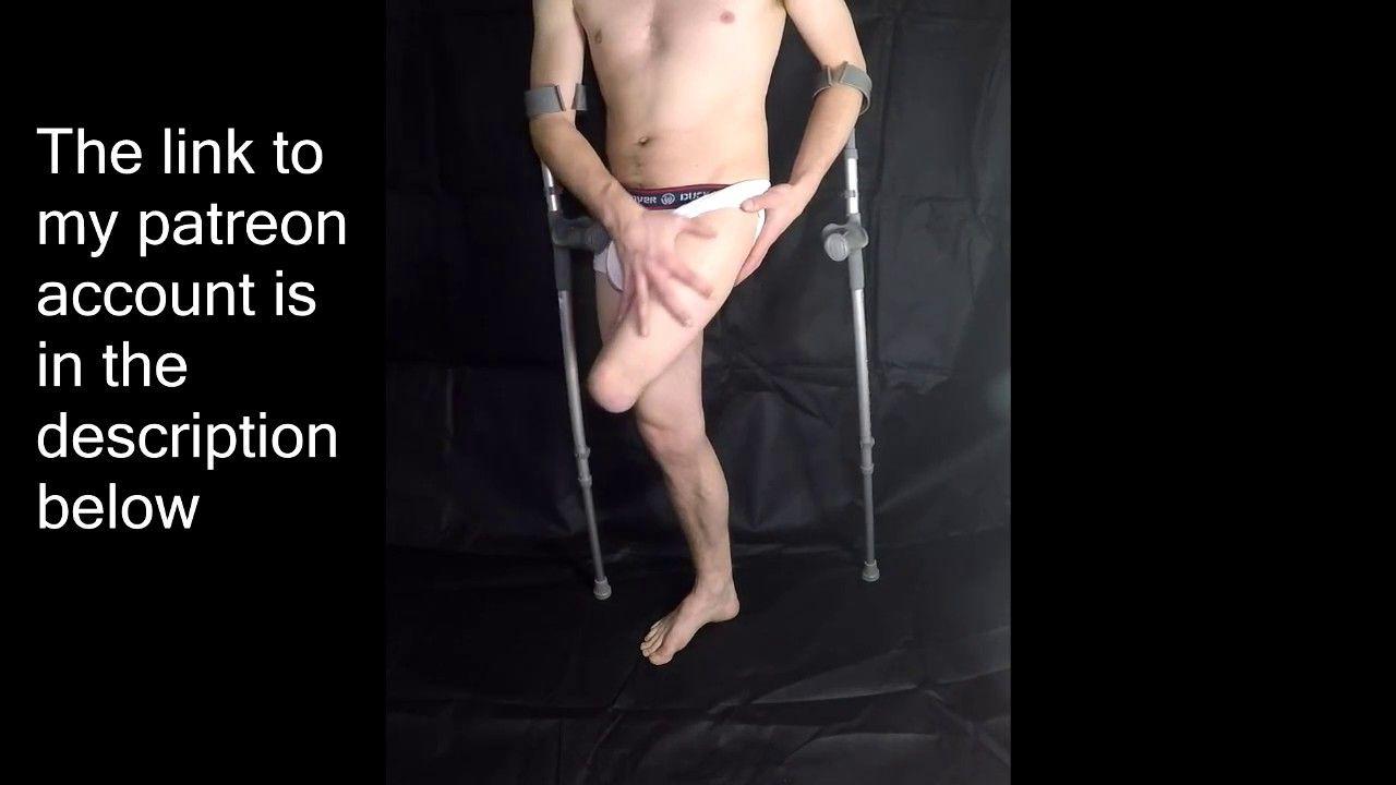 Gay amputee to walk