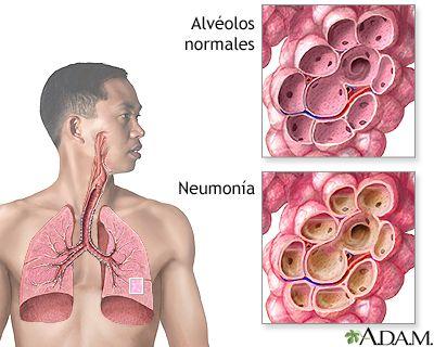 relacion acido urico creatinina en orina valores normales te de alcachofa para bajar el acido urico la leche de alpiste sirve para el acido urico