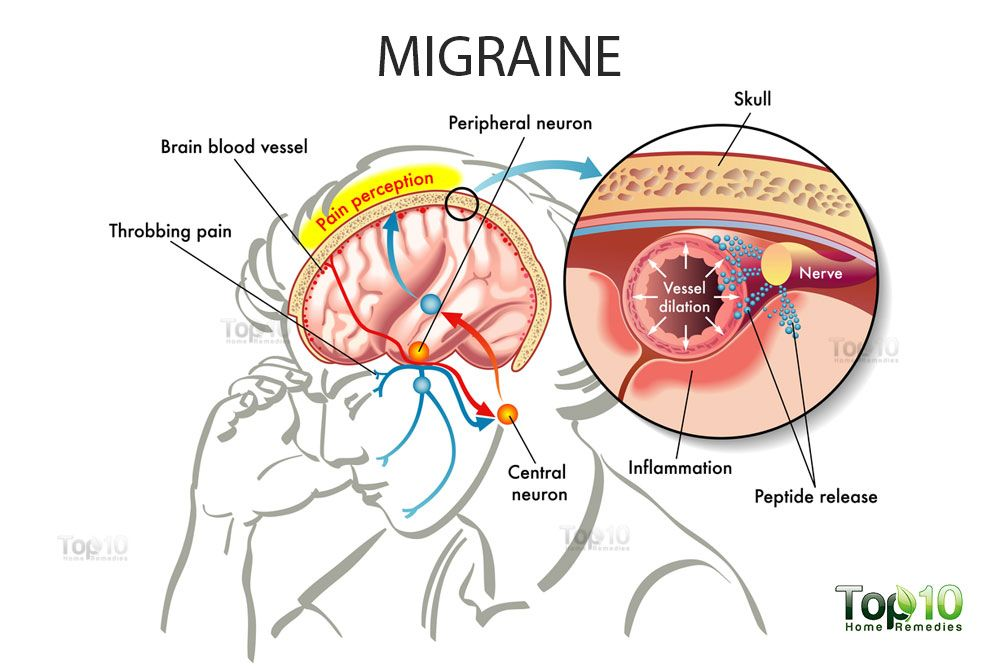 Migraines Home Remedies And Tips For Relief Top 10 Home Remedies Migraine Home Remedies Natural Headache Remedies Headache Remedies