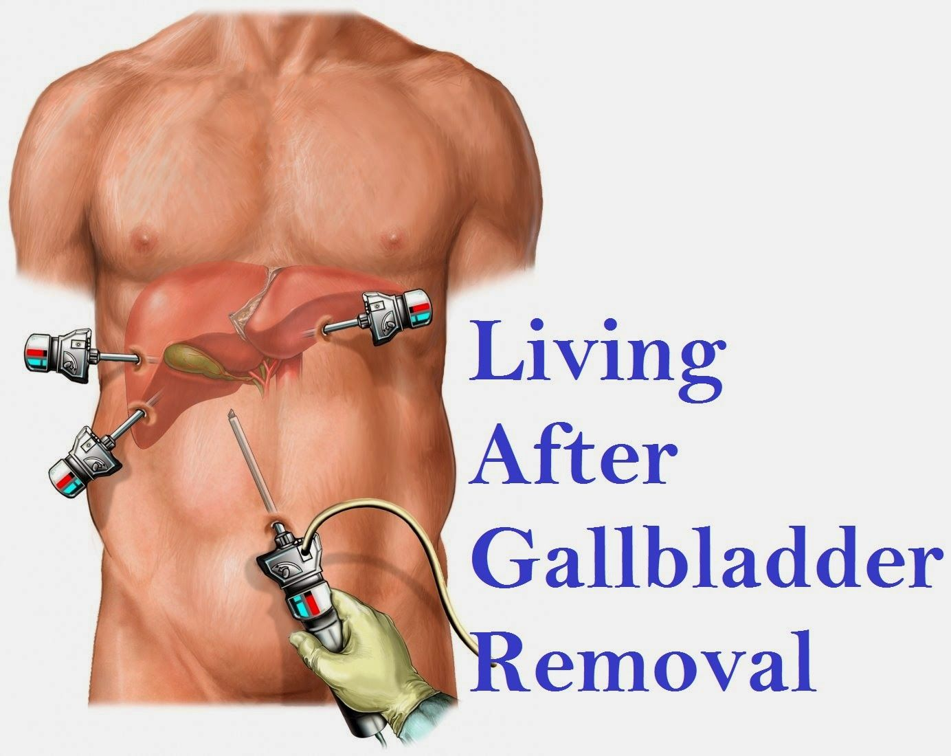 Do you lose weight after gallbladder removed